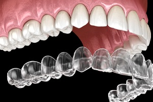 computer model of Invisalign aligners going over teeth
