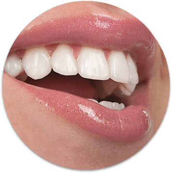 veneers on teeth
