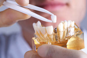 Kent Dental Implants