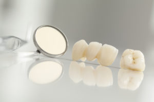 Did you know that your dental bridges in Kent can blend seamlessly among your natural teeth?