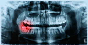 x-ray image of wisdom tooth
