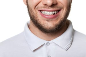 man missing a tooth