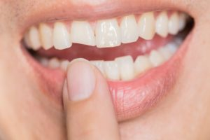 Closeup of chipped tooth visiting Kent emergency dentist