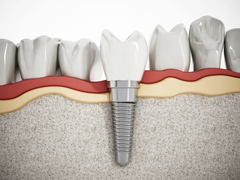 Dental implant in Kent embedded in jaw
